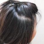 白髪の原因と対策方法